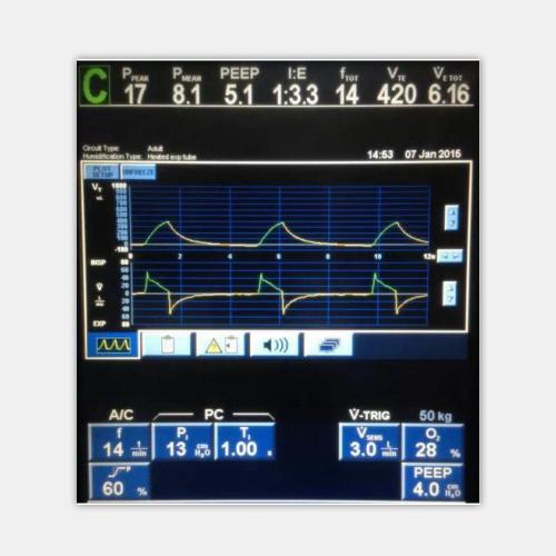 呼吸机显示屏